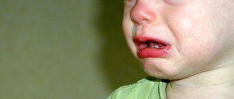 Аллергический ринофарингит у ребенка