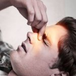 Что такое гиперпластический ринит: причины и лечение