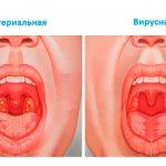 Гнойная ангина может вызываться бактериями и вирусами