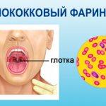 Гонорейный фарингит симптомы