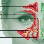 Классификация (виды) синусита
