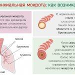 Откуда появляется бронхиальная мокрота в лёгких