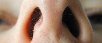 Ожог слизистой носа: лечение и симптомы, чем лечить
