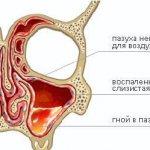 Проявление риносинусита