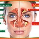 Схема отличия гайморита от здорового носа