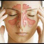 Синусит - причина головных болей в переносице