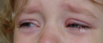 У девочки припухший глаз