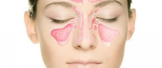 Воспаление гайморовых пазух серозного характера называется катаральным гайморитом