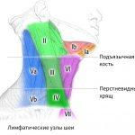 Воспаление лимфоузлов на шее: симптомы и лечение шейного лимфаденита, причины почему болят лимфоузлы на шее