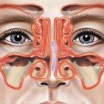 Воспаление слизистой нескольких пазух носа